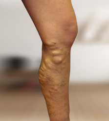 visszerek a lábakon alternatív kezelési módszerekkel milyen olaj visszér
