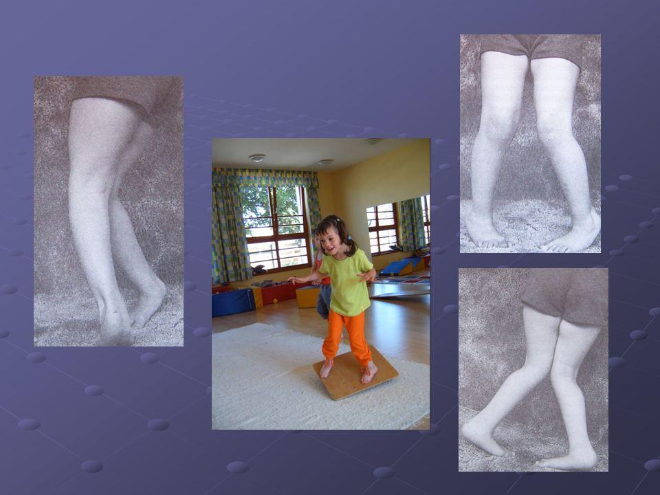 fogyatékosság az alsó végtagok varikózisával