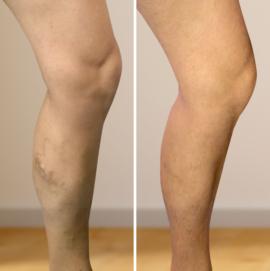 a lábak duzzanata a visszér műtét után
