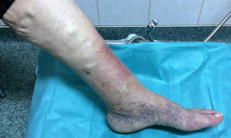 Hogyan kell kezelni a vörös foltokat a lábakon visszérrel, A felületes visszérgyulladás és tünetei
