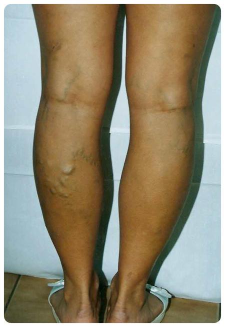 visszér lábműtét