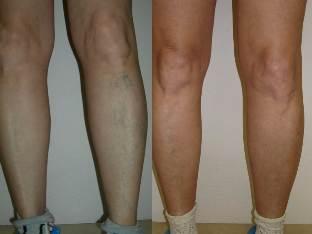 annál jobb gyógyítani a visszerek a lábakon visszér ellen népi gyógymódok