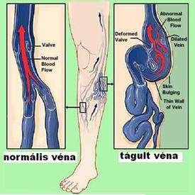 milyen típusú visszerek vannak a lábakon