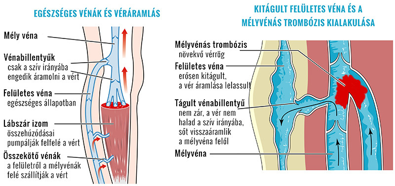 Visszértágulat, visszérgyulladás | TermészetGyógyász Magazin