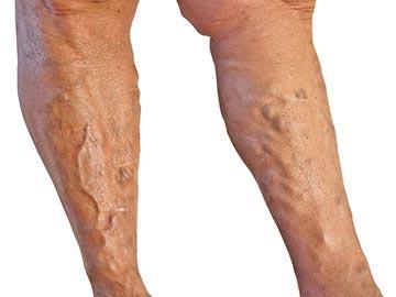 kék foltok a visszér lábain