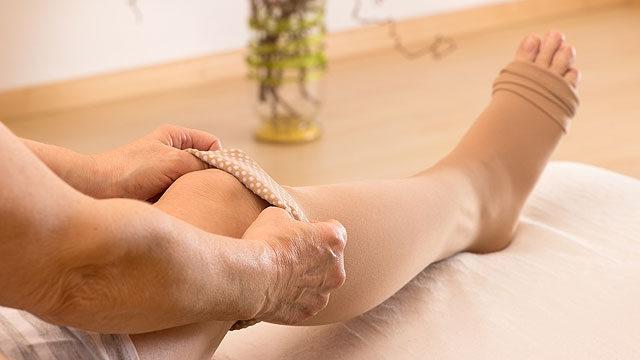 visszérrel a lábak terhes nőknél duzzadnak a visszeres kompressziós harisnya mérete