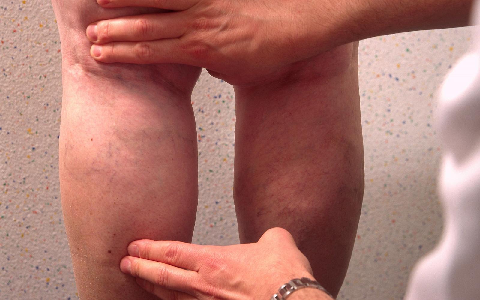 A vénák betegségei - A visszerek járás közben fájnak