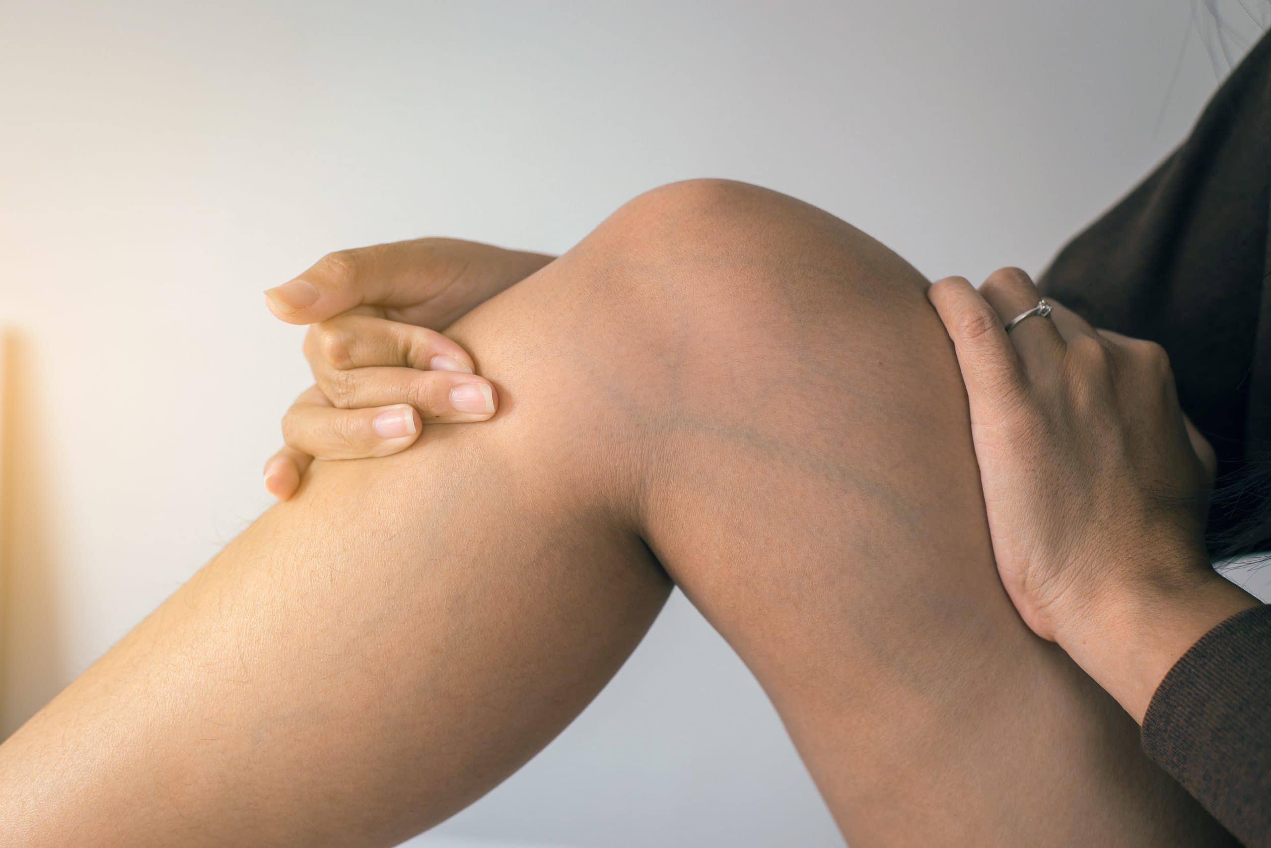 bőrelváltozások visszerek a lábakon szakember visszér