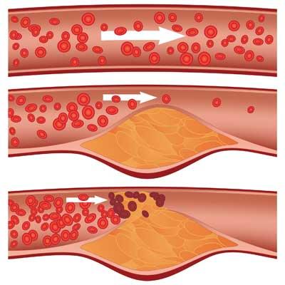 Szkleroterápia (sclerotherapia)