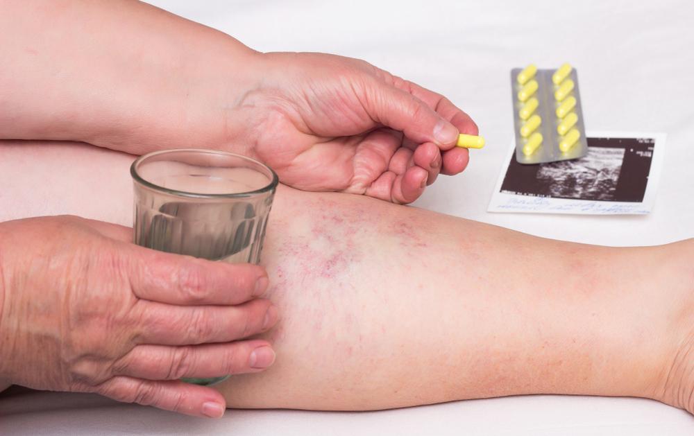 a visszér kezelésének legújabb módszere színterápia visszér