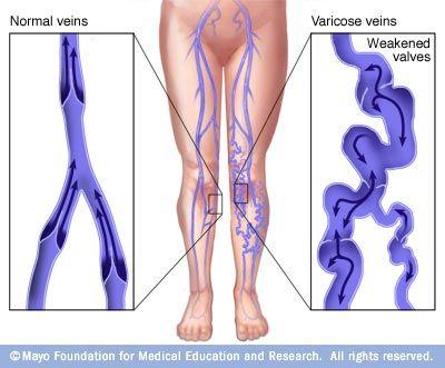 hajlam a visszérre, hogyan lehet megtudni a visszér és a trombózis tünetei