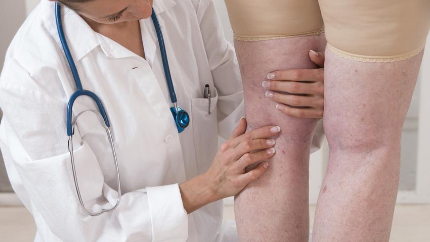 Hideg pakolás a láb visszerek esetén. Mikor jó a fájdalomra a meleg?