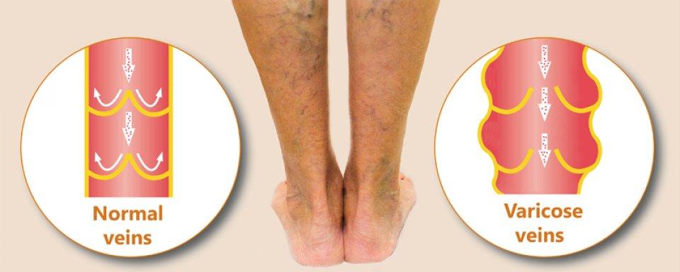 krémek a lábakon visszerek