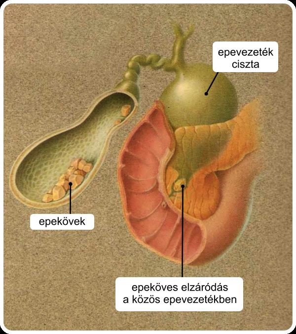 az epehólyag műtéte visszér