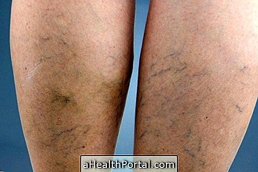 Képek a varikózus erek a lábak