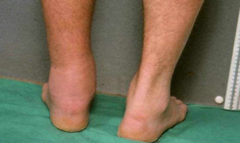 dagadt láb visszeres