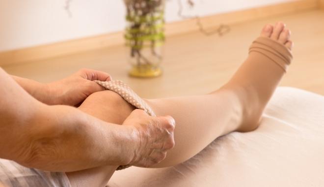 visszér a lábán a térd közelében