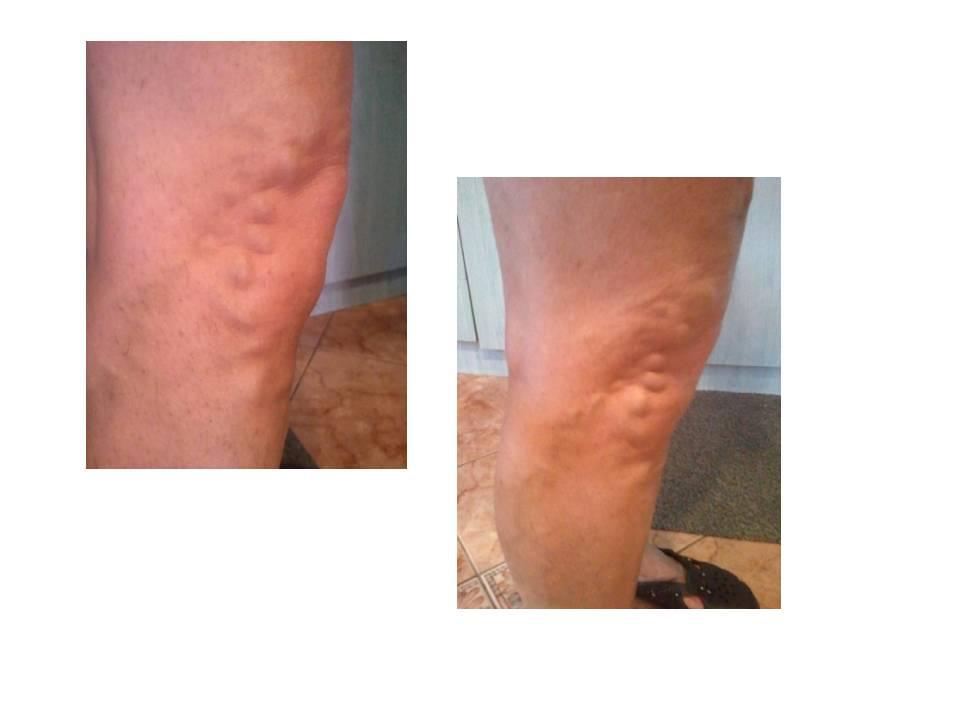 Csomó oka lehet annak, ha fáj a lábad: izomkimerültség, visszér, köszvény? | NOSALTY