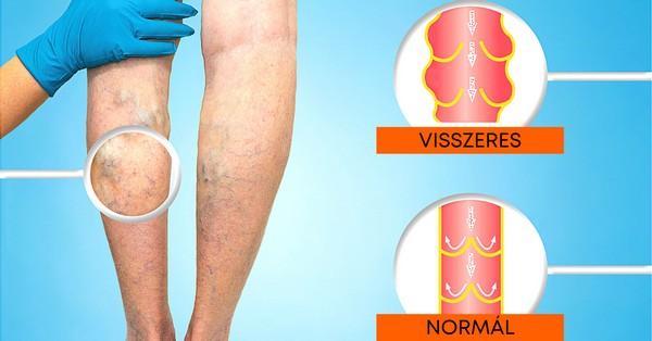 annál jobb gyógyítani a visszerek a lábakon minden visszér elleni gyógyszer
