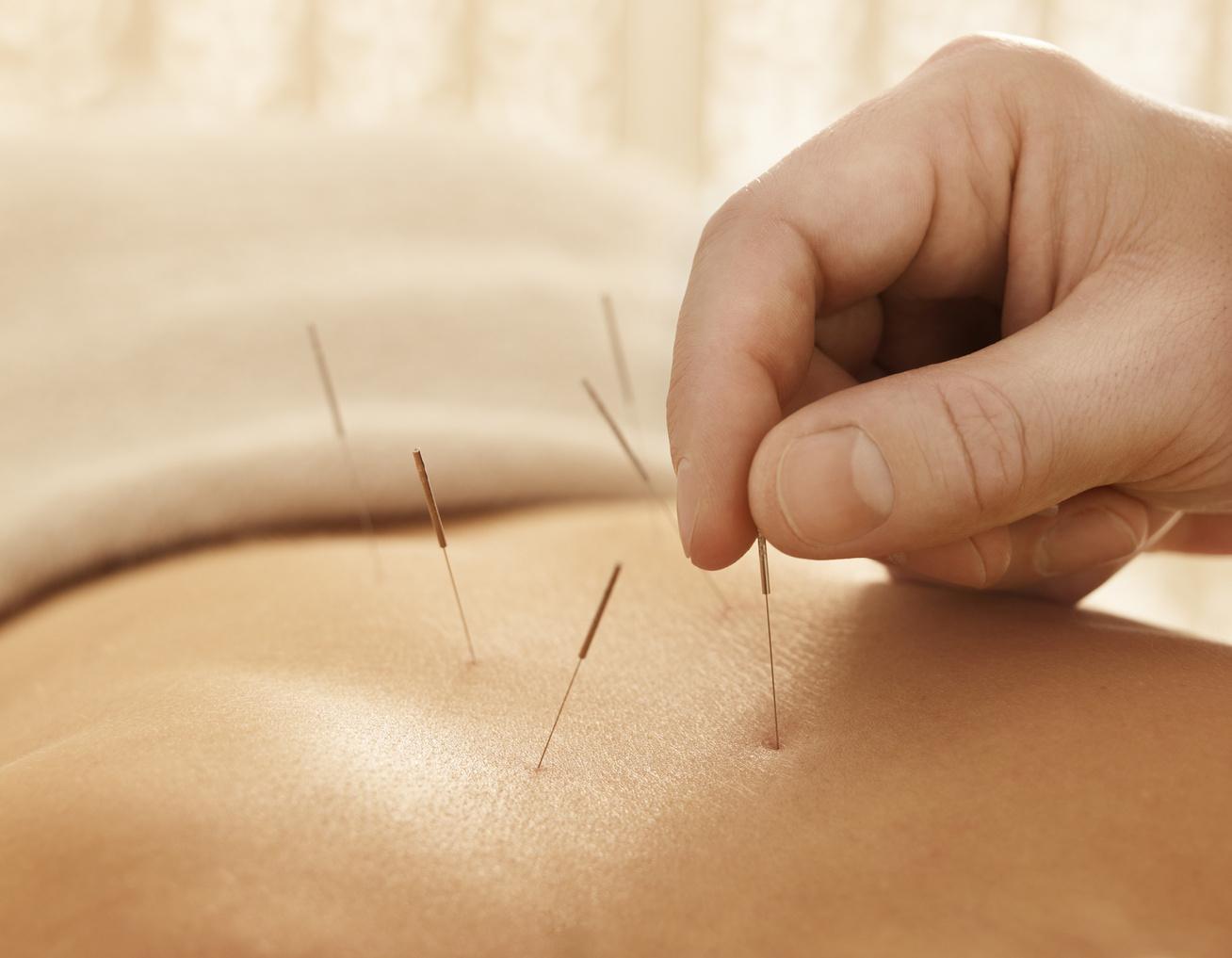 áttekinti a visszér akupunktúrás kezelését