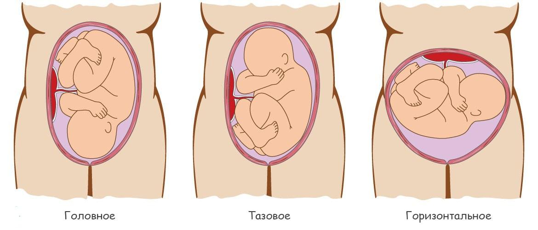 terhesség és visszér a lábon