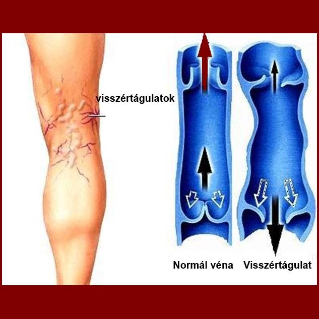 kötözés visszérgyulladás esetén álló munka fájdalom lábak visszér
