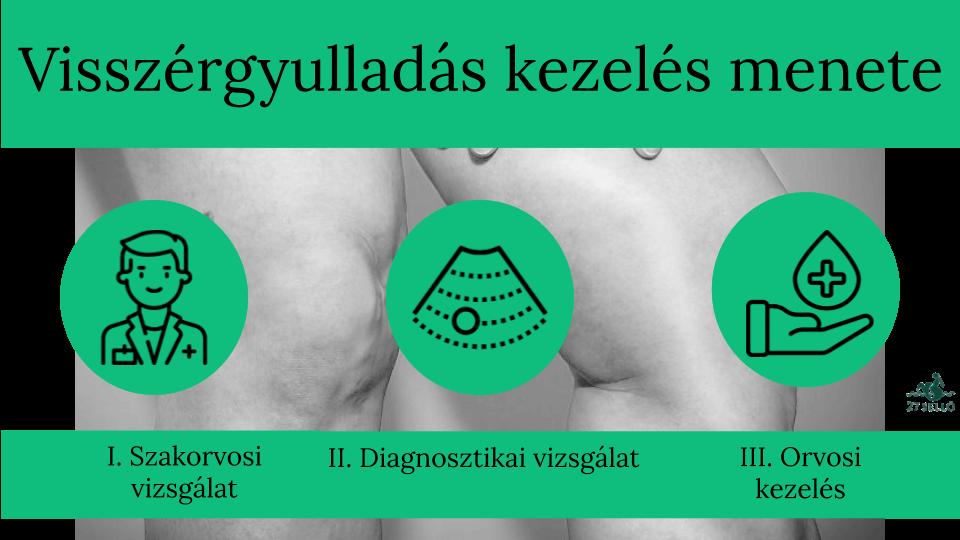 hirudoterápiás séma a piócák visszértágulására reggeli fájdalom a visszeres lábszárban