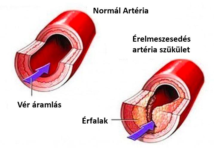a láb viszketése visszeres szülés vérrög visszérrel