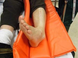 hidrogén-peroxid a lábak varikózisában)