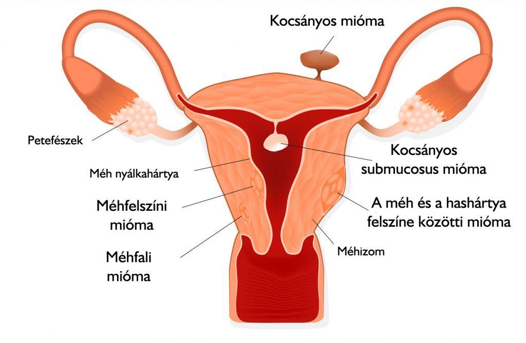 mi a kismedencei szervek visszér ortopéd visszér harisnya nőknek