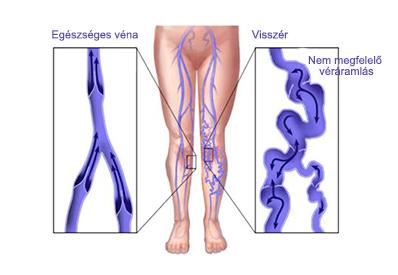 mi erősíti a varikózisos erek falát
