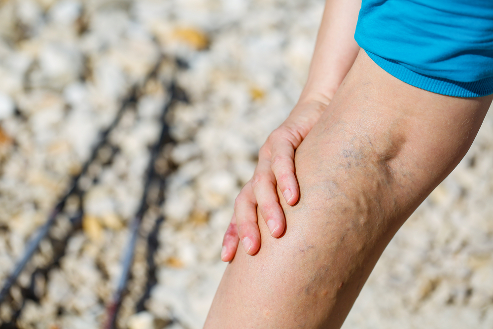 az alsó lábszáron lévő visszér okozza térdmagasság a visszér megelőzésére