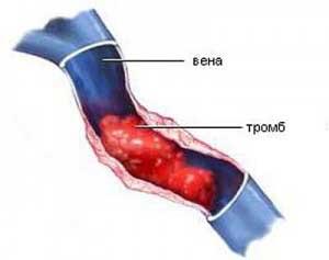 Phlebitis: tünetek és kezelés - Thrombophlebitis
