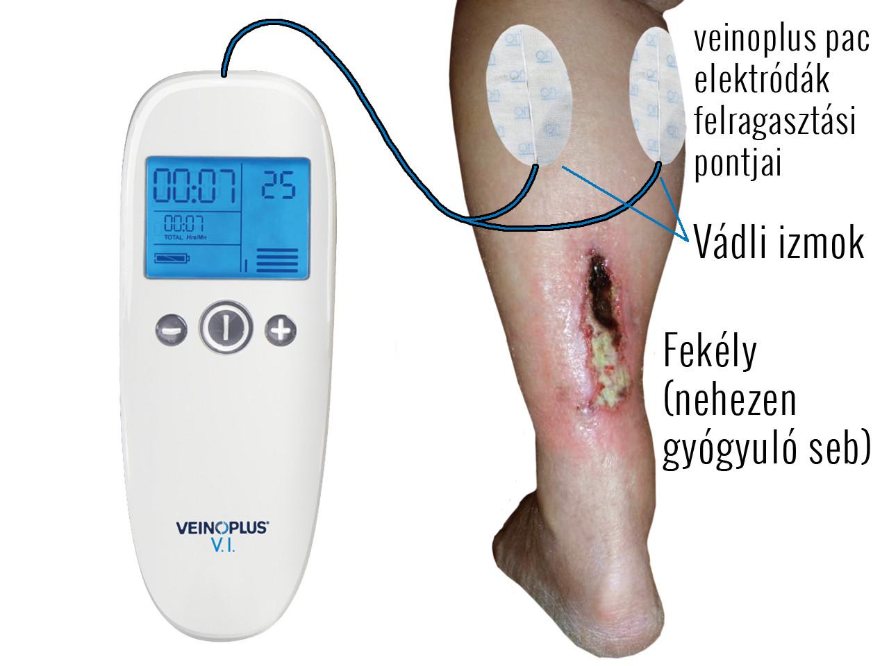 nehézség a láb varikózisában