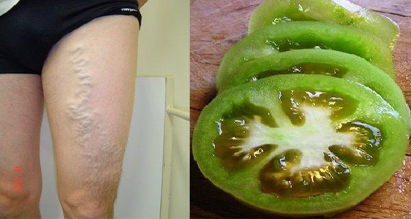 visszérrel a lábak terhes nőknél duzzadnak