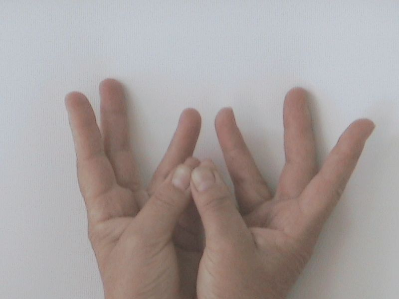 a visszér melyik rendszer betegsége kompressziós fehérnemű visszerek terhesség alatt