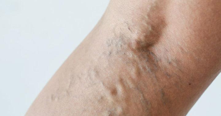 az adenomyosis visszeres kezelése visszér kezelési módszerek gyógyszerekkel
