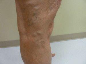 visszeresség a jobb lábon terhesség alatt a műtét következményei az alsó végtagok varikózisában