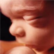 terhesség 29 hét visszér