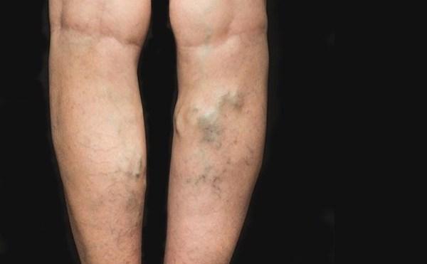 a varikózis működésének ára a lábakon