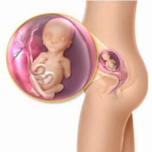 visszerek a terhesség 37. hetében