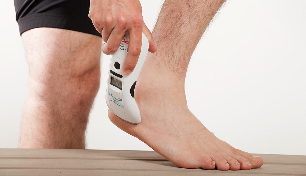 Milyen műveleteket végeznek a visszeres lábakon? - Bőrgyulladás