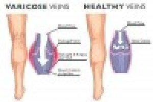 Visszér kezelése hemlock. Konzílium - A légmell tünetei és kezelése kézbetegség ízületi betegség