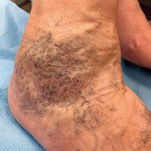 visszér a lábakon darsonval kezelés