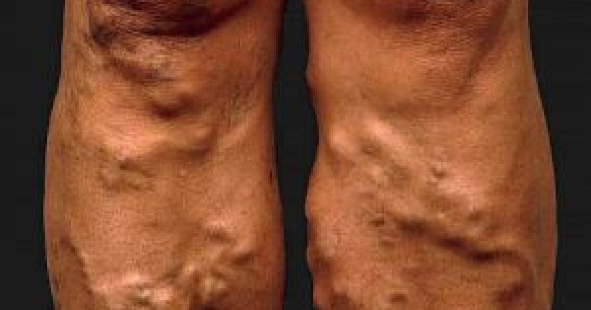 barna foltok az alsó lábszáron visszérrel