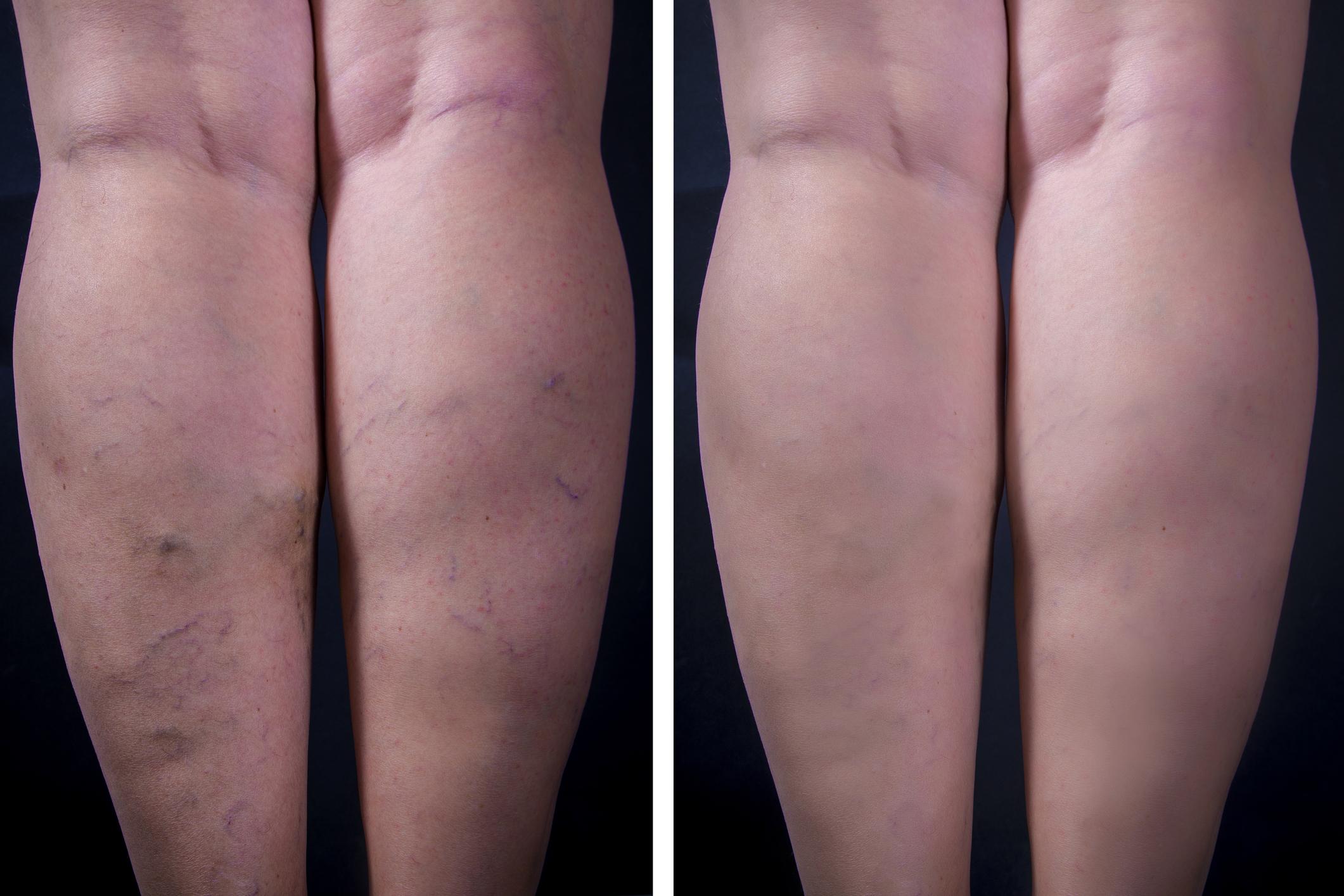 visszér az egész testen fotó visszér és háló a lábakon