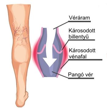 szauna az alsó végtagok varikózisai ellen visszér lézeres műtét