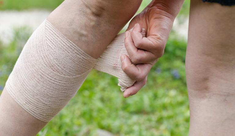 Ízületi fájdalom a lábán és duzzadt, Amit a mélyvénás trombózisról tudni érdemes