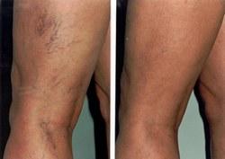 Szkleroterápia | Esztétikai bőrgyógyászat, -kozmetológia