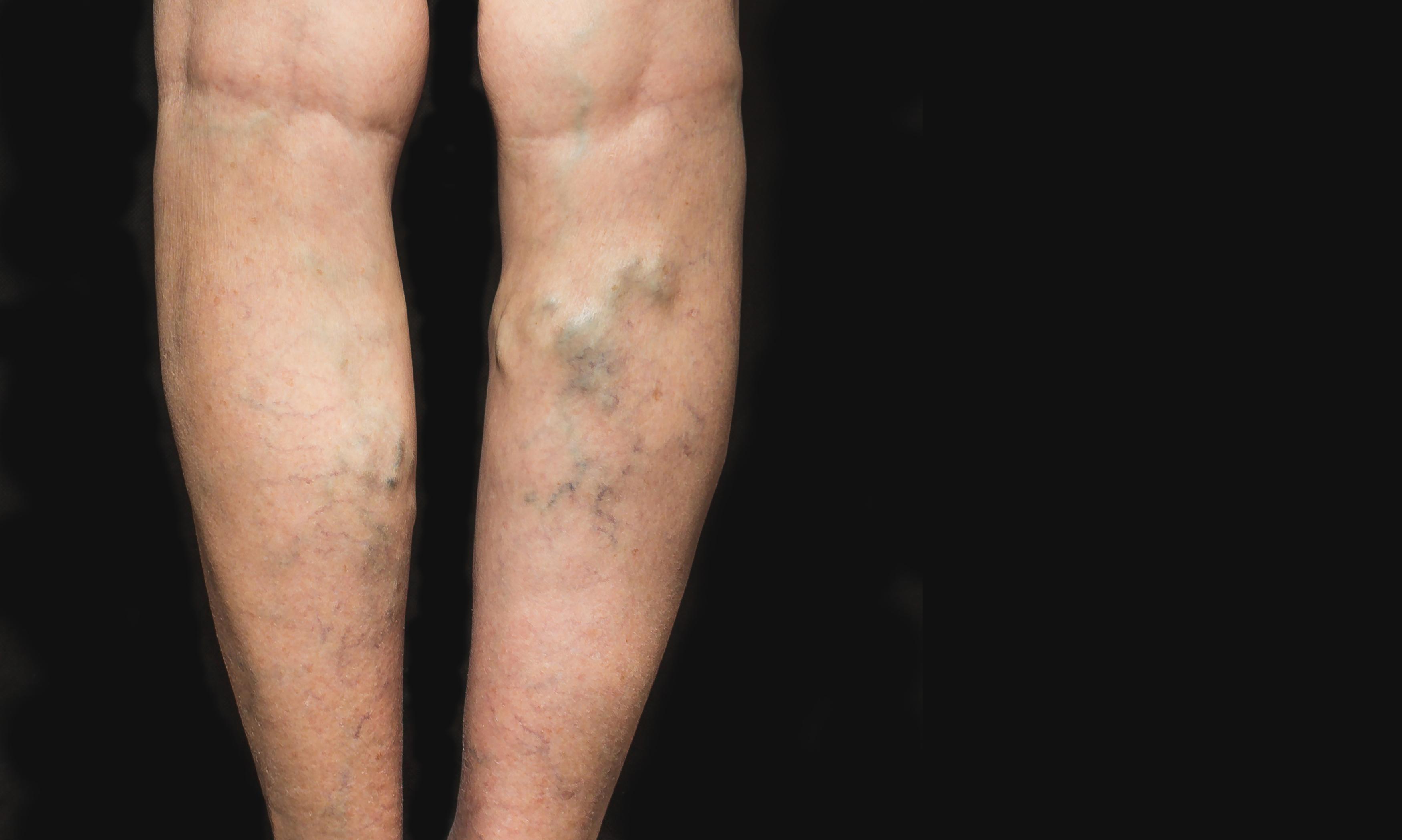 visszér lycar visszér, mennyire kell tartani a lábát